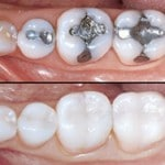 replacing amalgam fillings Brisbane