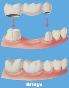 dental bridge work